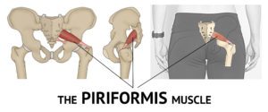 Piriformis Syndrome Diagram