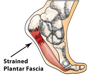 Strained Plantar Fascia Diagram