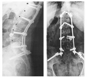 Seven-Vertebrae Lumbar Fusion X-Ray