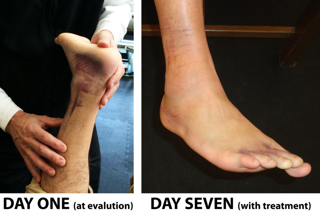 Ankle Sprain Case Study Days One and Seven